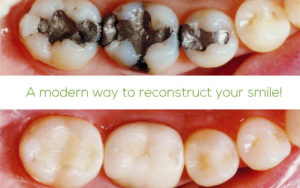 Replace amalgam to composite fillings at Elation Dental, 111 Bayswater Road, Croydon South, Vic 3136!